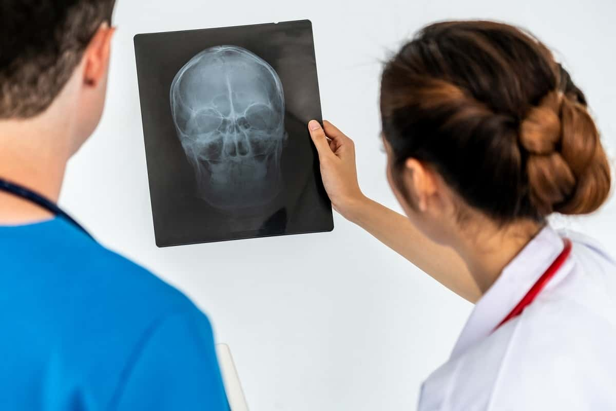 Two doctors looking at xray of skull